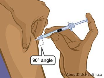 Enoxaparin: Injecting at home