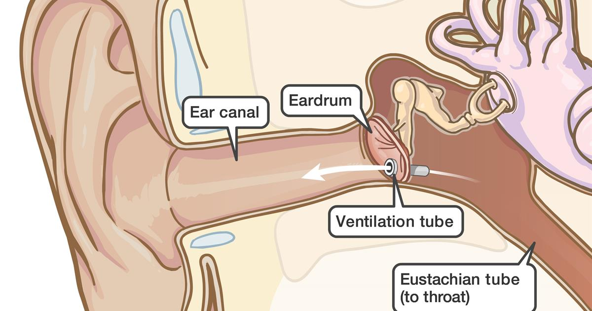 Myringotomy And Ear Tubes Care At Home After The Procedure