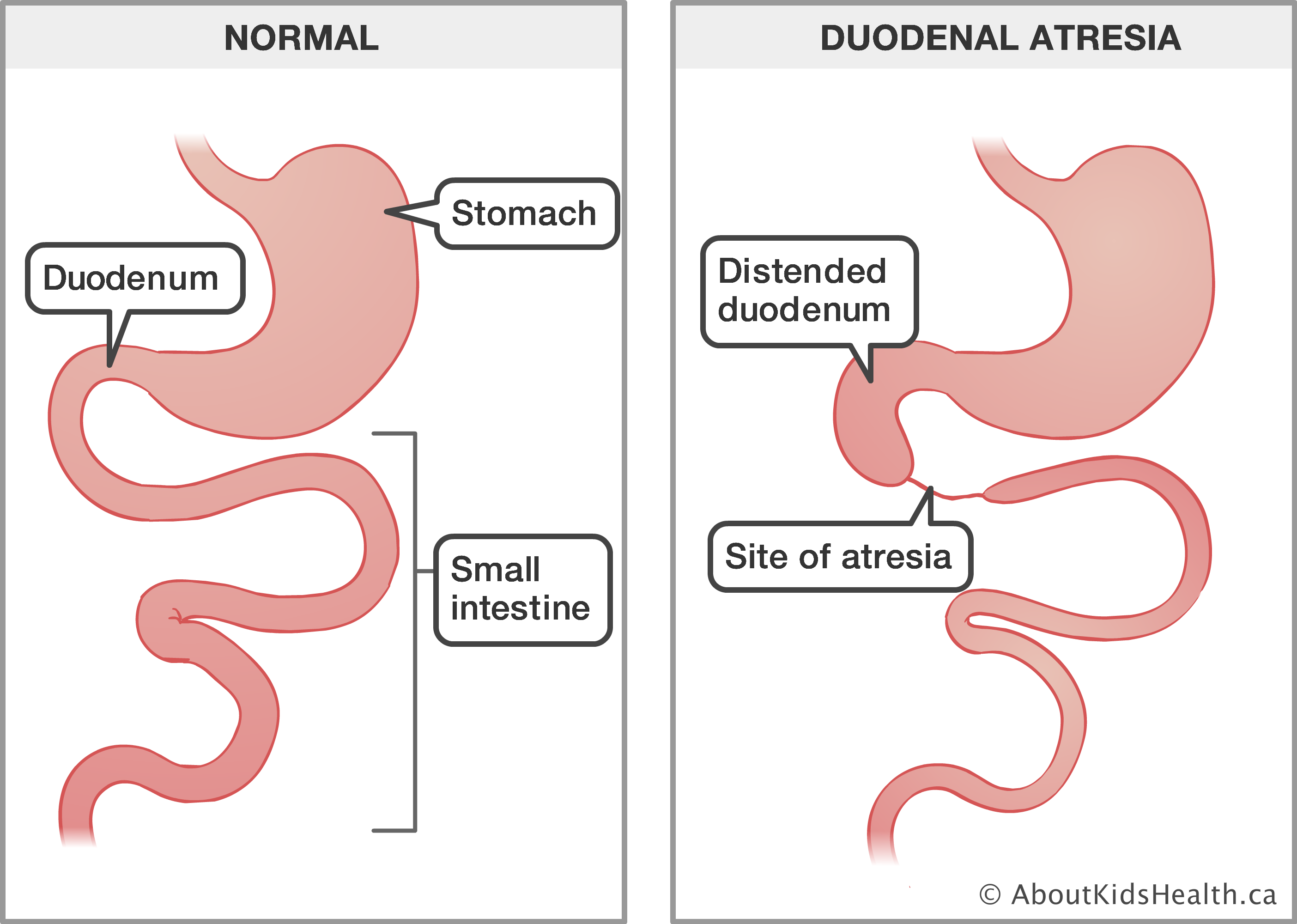 Anal sex intestine slipping out