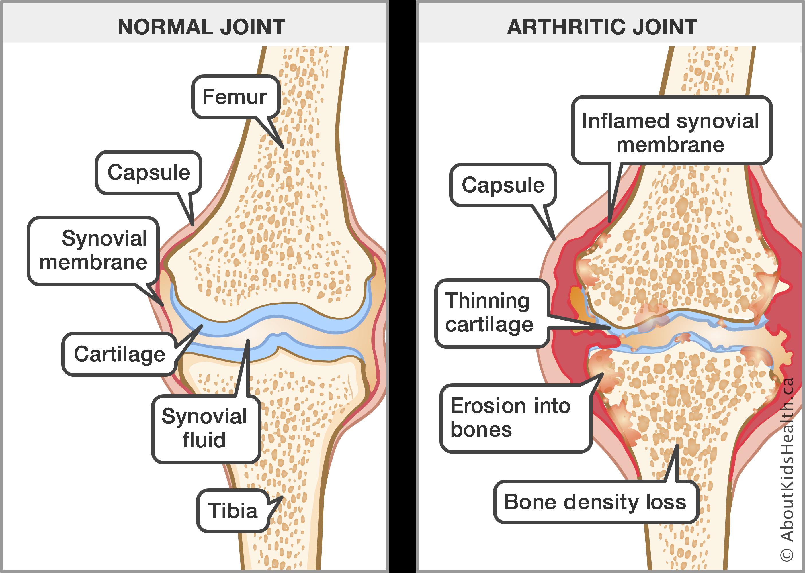 Obat tradisional nyeri sendi pada lutut