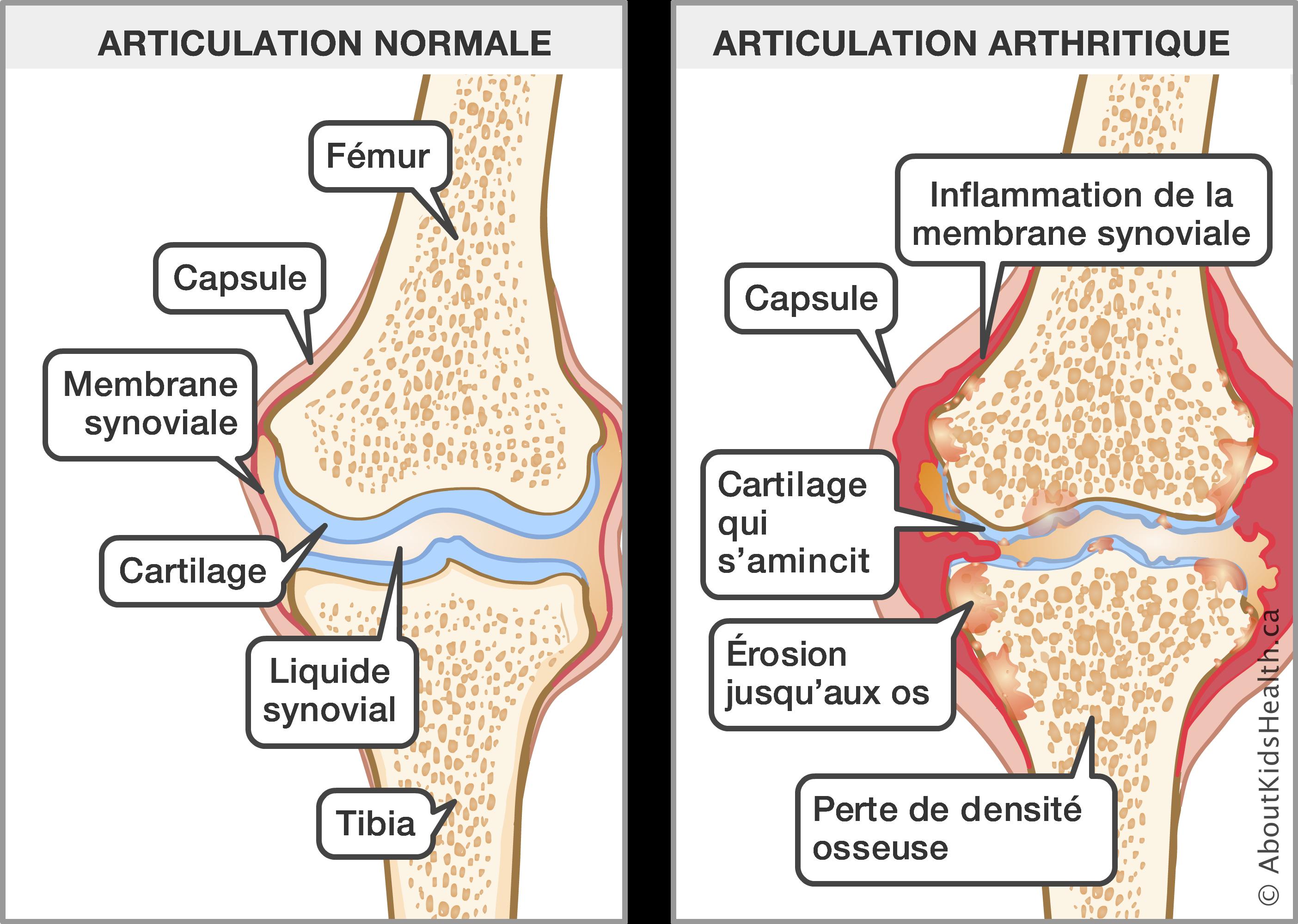 Avis Boswellia - Quels traitements pour l'Arthrite ? — Silver Economie
