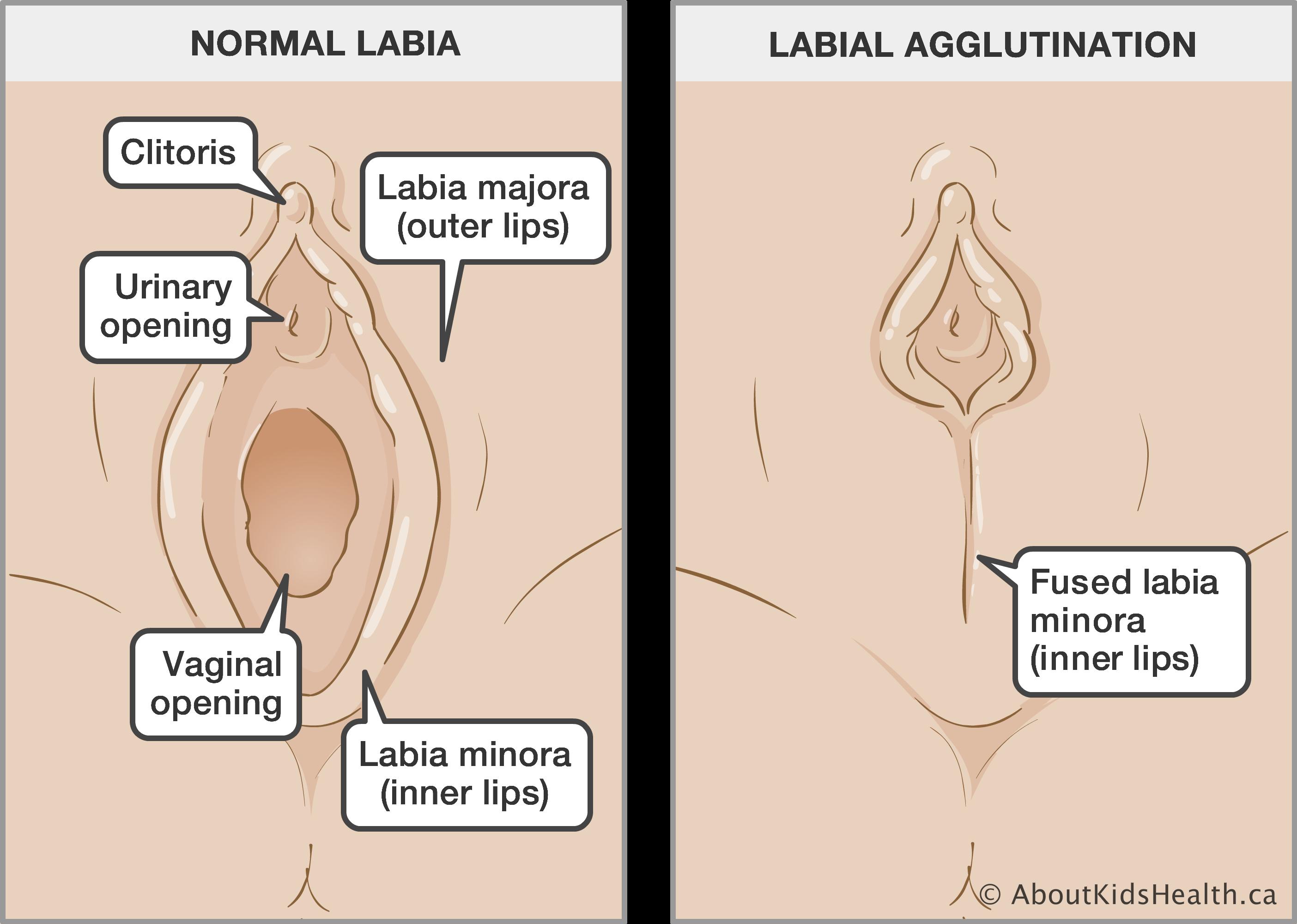 Female fused clitoris