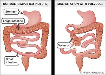 Digestive problems in newborns