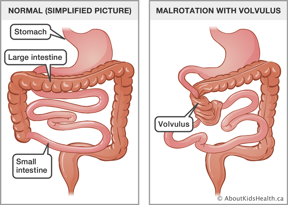 Congenital malformations of the gastrointestinal tract
