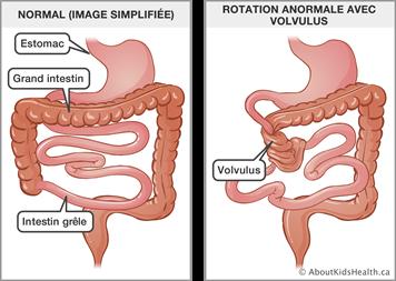 Malformations congénitales de l'appareil gastro-intestinal