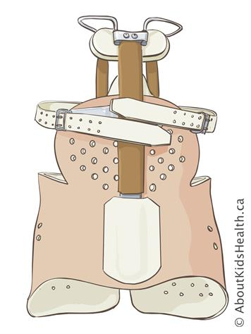 Milwaukee orthosis (cervical thoracic lumbo sacral orthosis)