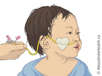 Determining Placement For Your Child >> Nasogastric Ng Tube How To Insert Your Child S Ng Tube