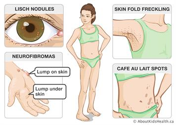 Neurofibromatosis type 1 (NF1): Treating health complications