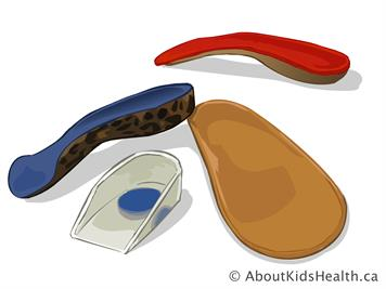 footwear and orthotics for jia
