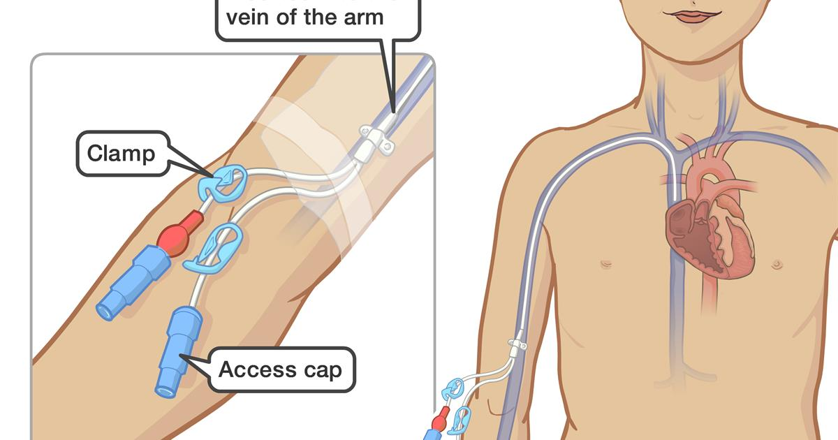 Peripherally inserted central catheter (PICC)