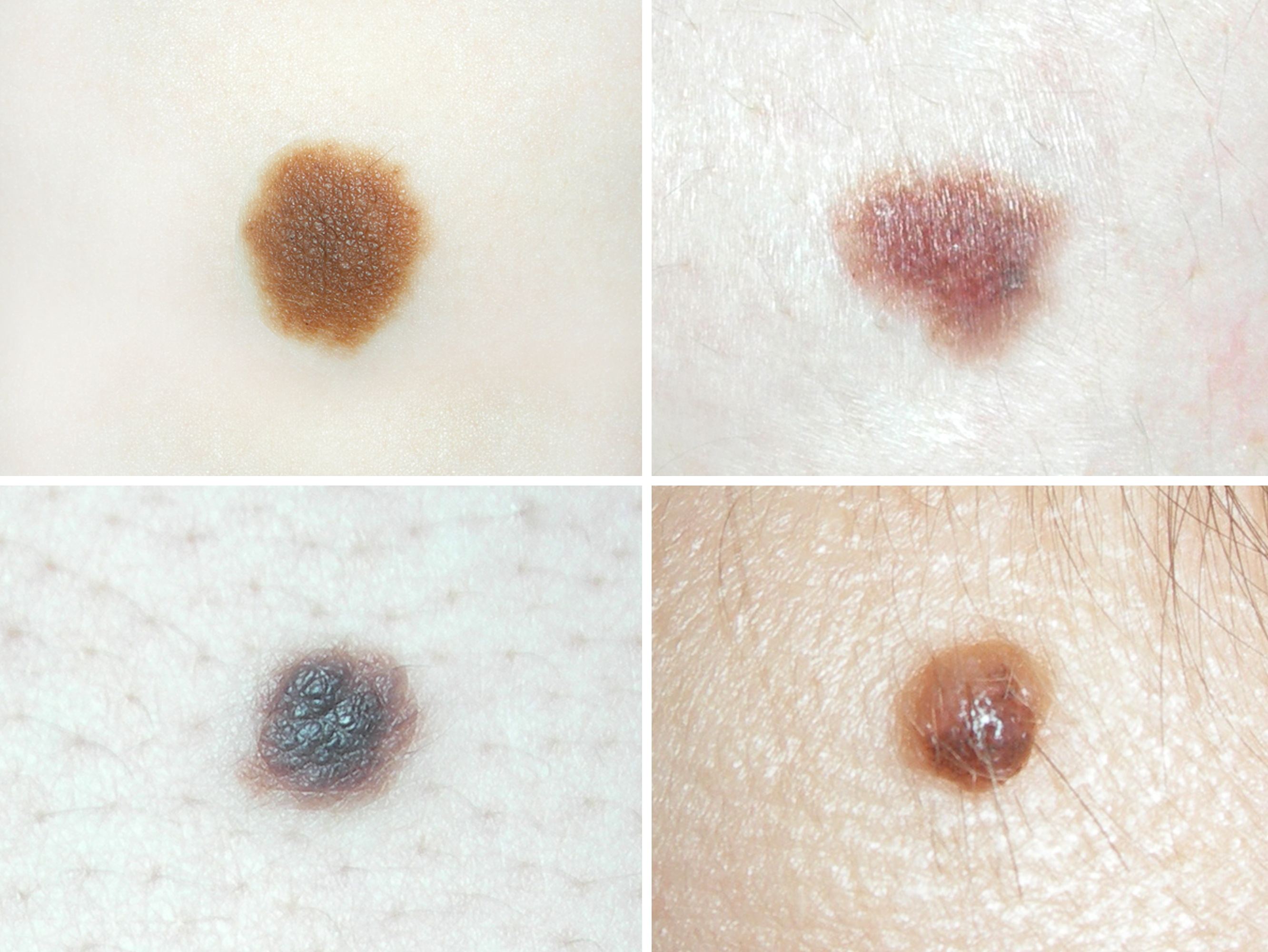 Mole in different parts of the body meaning