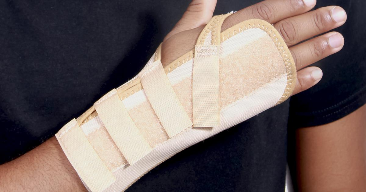 Fracture: How to treat a buckle fracture of the distal radius