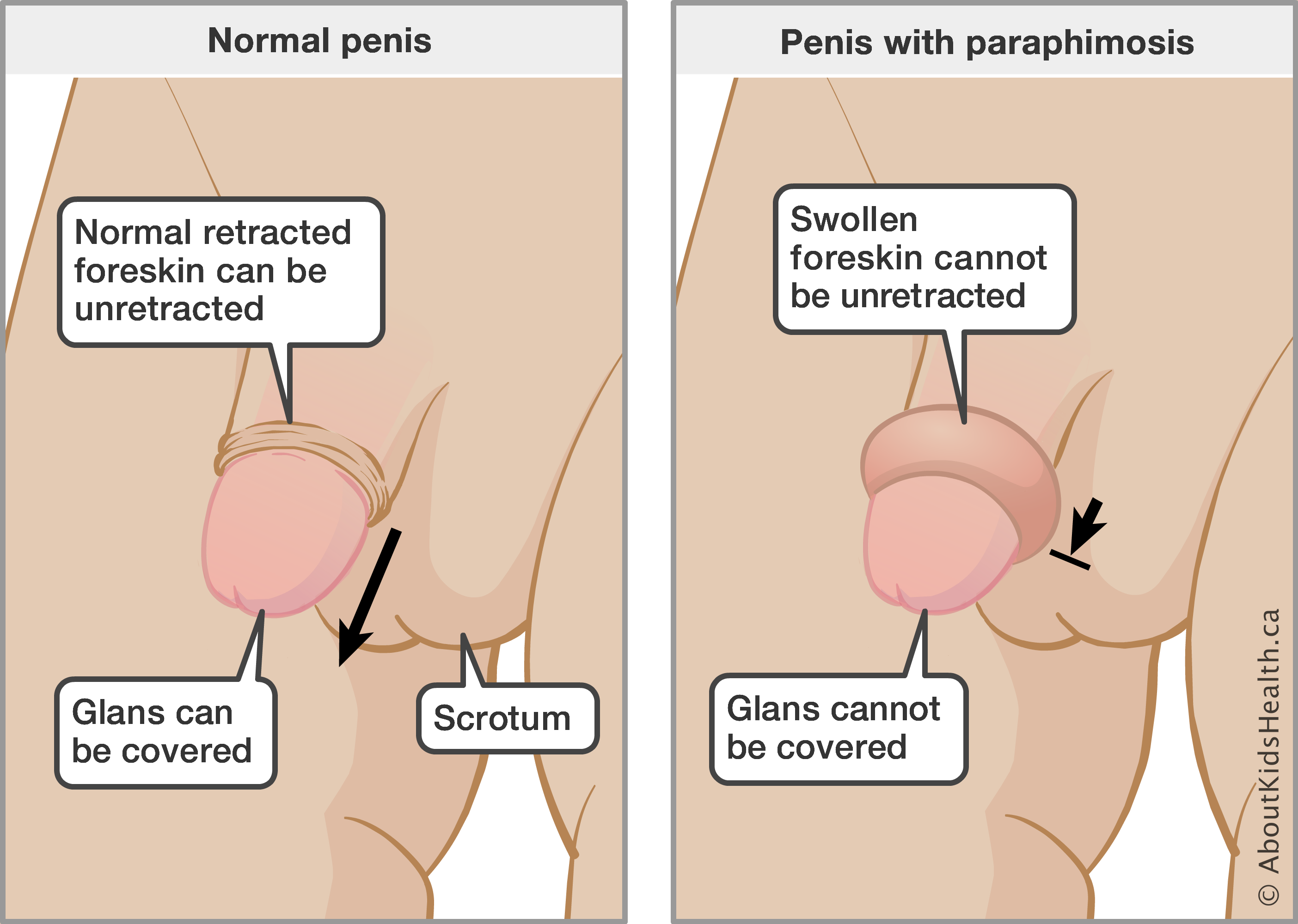 Glans penis is abnormally sensitive