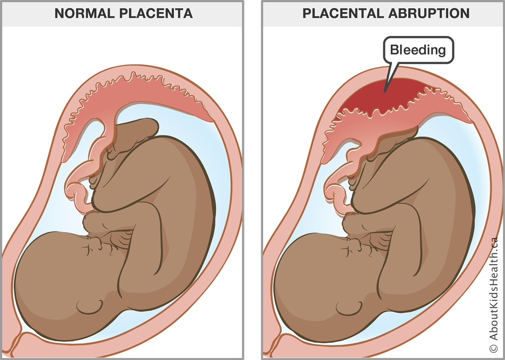 Complications Of The Placenta