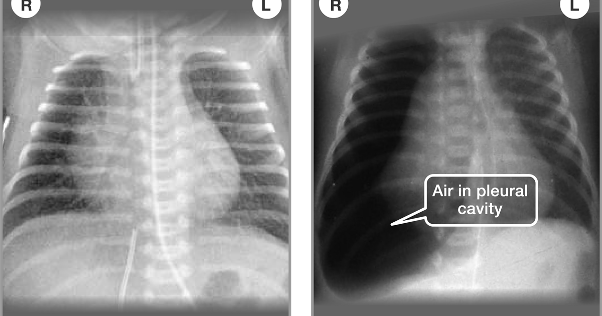 Diagnosis of other lung conditions in premature babies