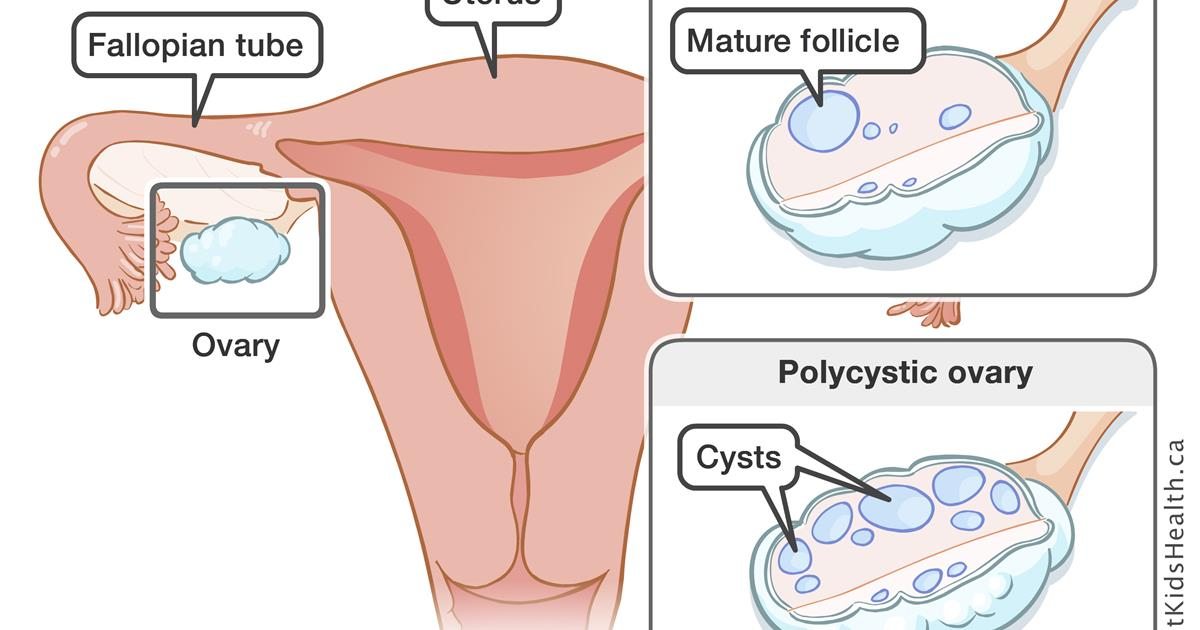 Polycystic ovaries syndrome (PCOS)