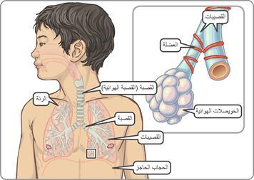 5f1aaacb52068 التهاب القصيبات