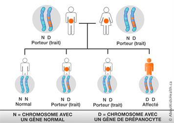 """Résultat de recherche d'images pour """"drepanocytose pendant la grossesse"""""""
