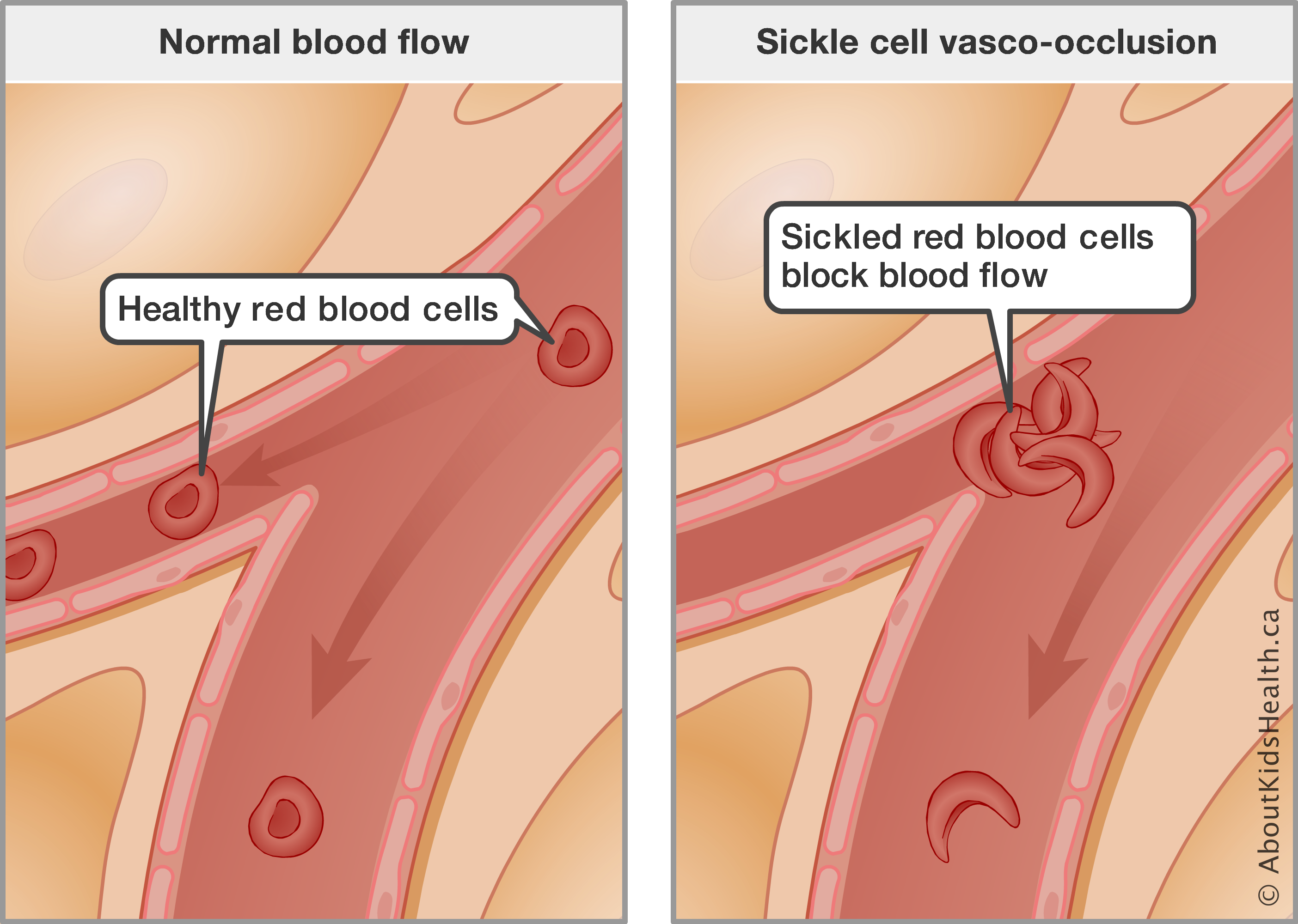 Sickle Cell Anemia : A Mothers Perspective What Every Parent Should Know
