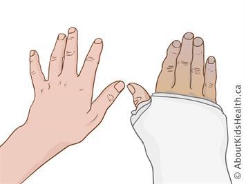 Soin d'un plâtre au bras ou à la jambe