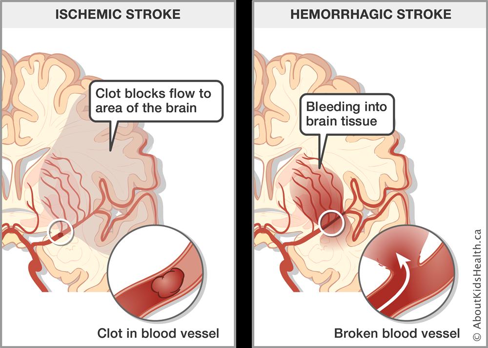 Stroke in newborns