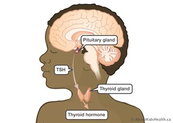 Thyroid Effects After Brain Tumour Treatment