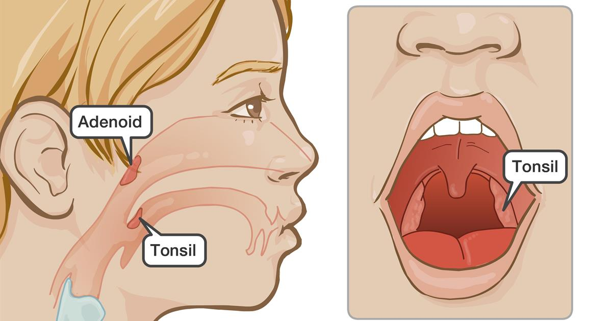 tonsillectomy or tonsillectomy and adenoidectomy with obstructive