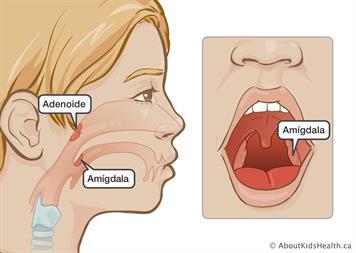 Cirugía De Amígdalas O Cirugía De Amígdalas Y Adenoides Cuidado Del Niño Después De La Operación