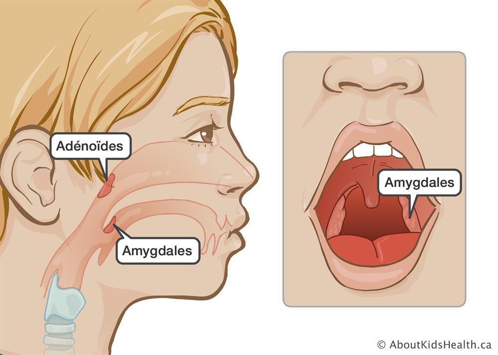 Opération des amygdales et/ou des végétations adénoïdes : soin de ...