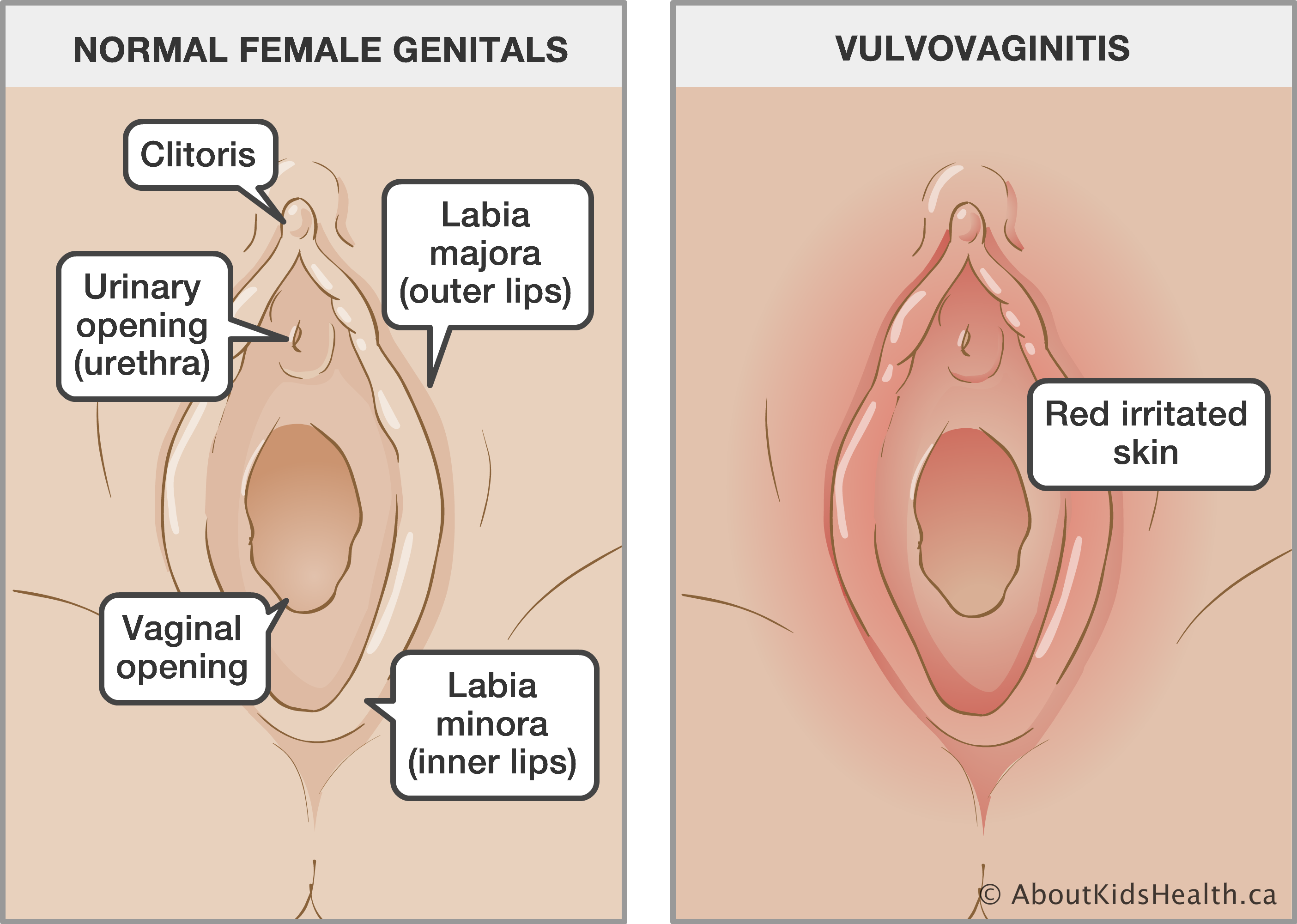 How long does a vaginal rash last