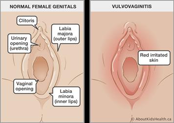 Small bump in vagina #13