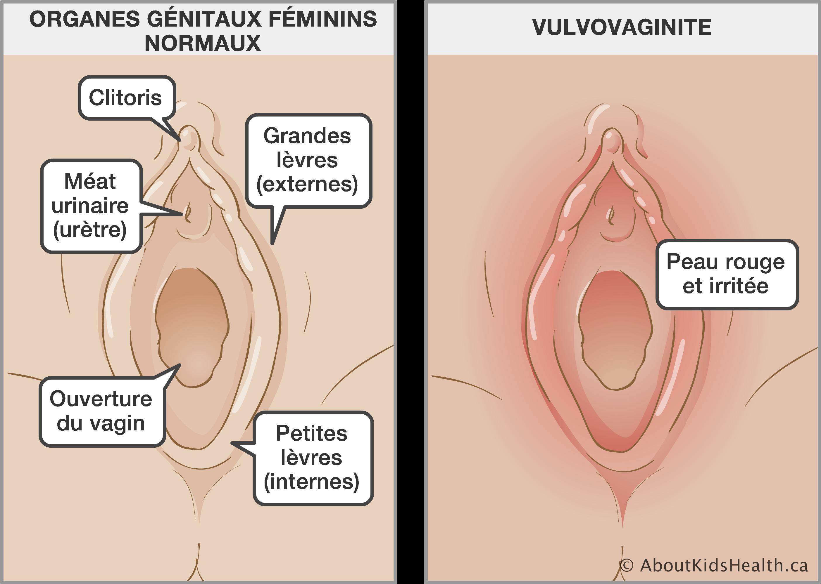 photos de vagins adolescents transsexuelles porno