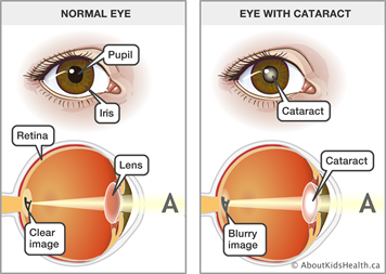eye problems and juvenile idiopathic arthritis