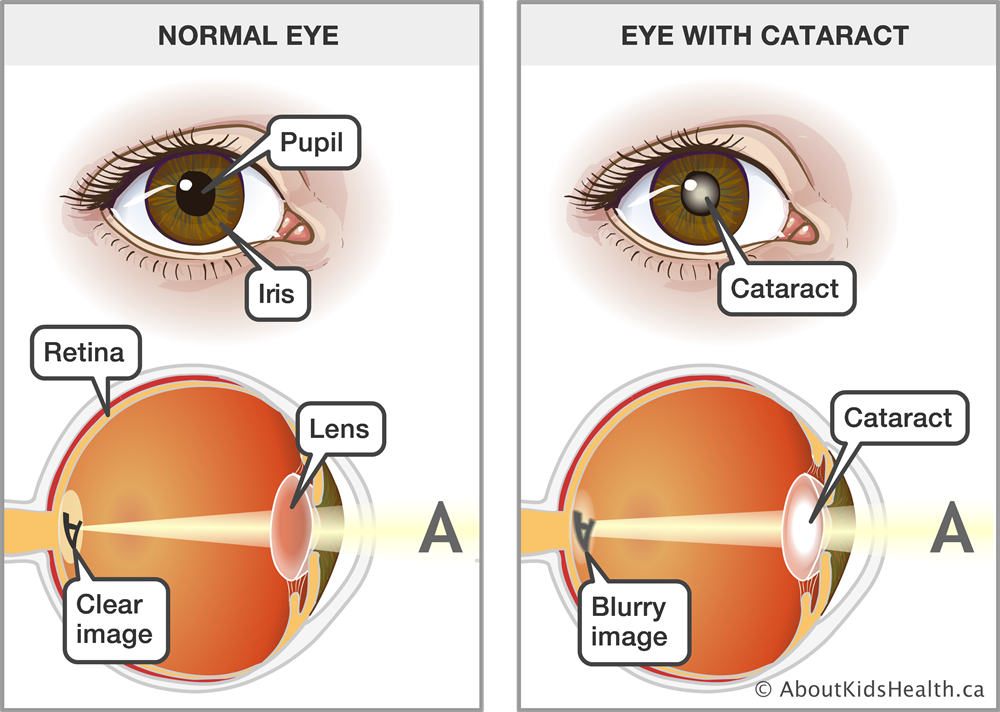 How To Get Rid Of Cataract Naturally