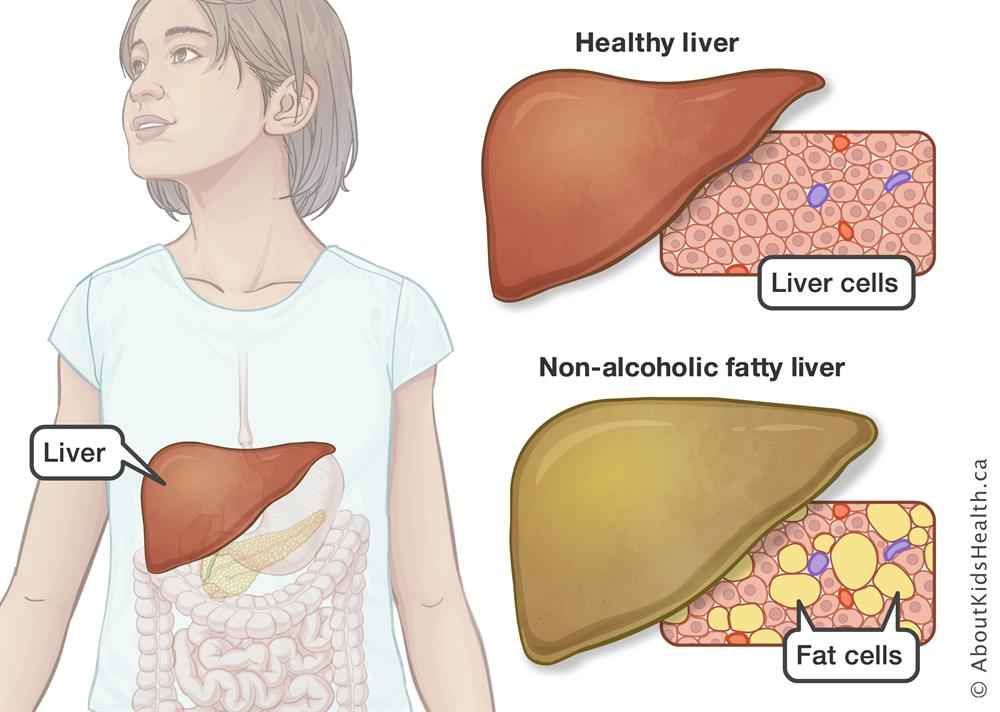 Non Alcoholic Fatty Liver Disease Nafld And Diabetes