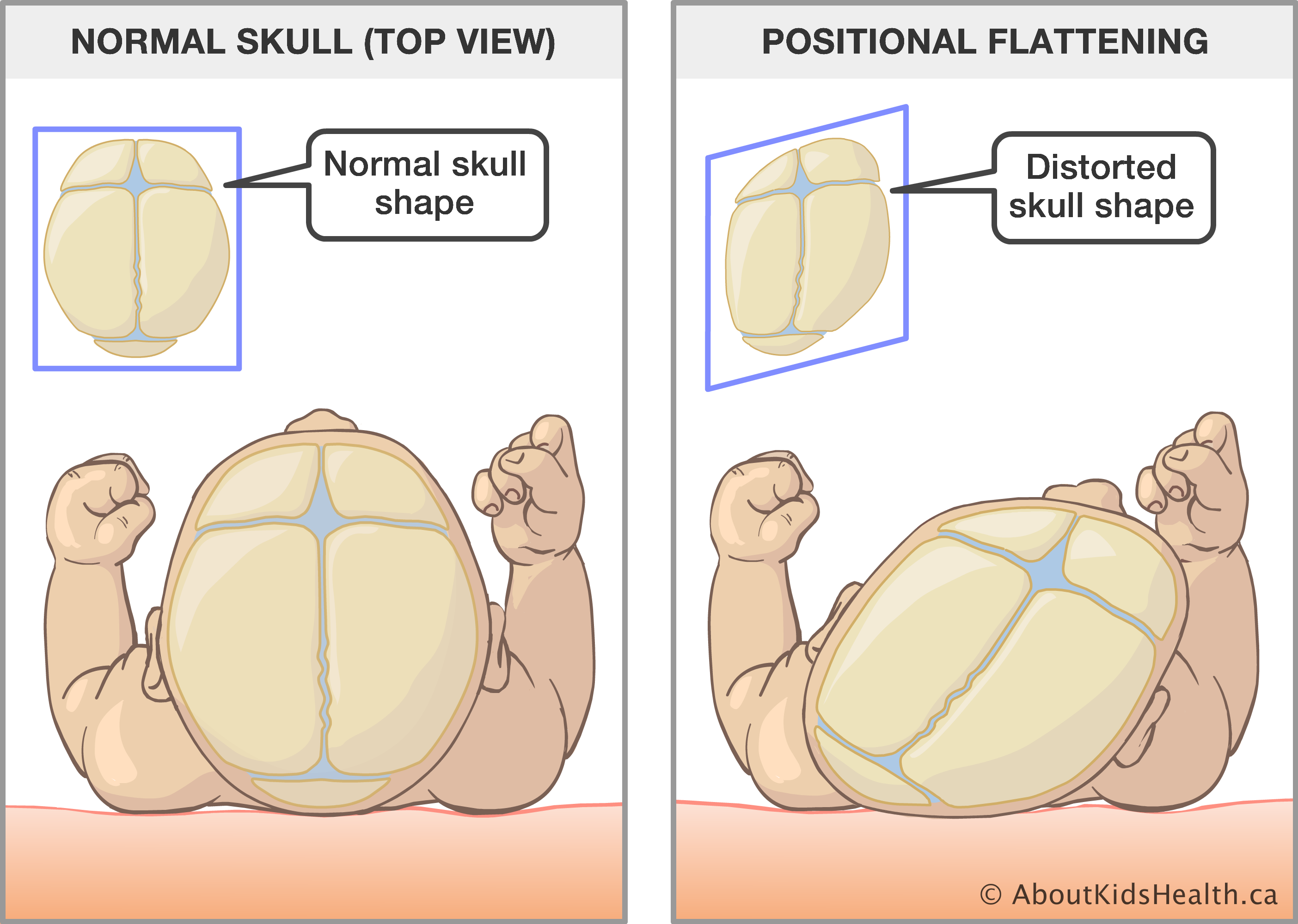 What are the signs of positional plagiocephaly?