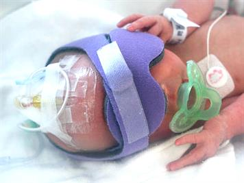 Types of vascular access for premature babies