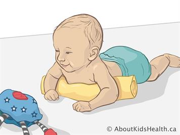 positional plagiocephaly flattened head syndrome