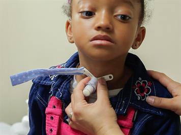 Tracheostomy How To Change Your Child S Tracheostomy Tube